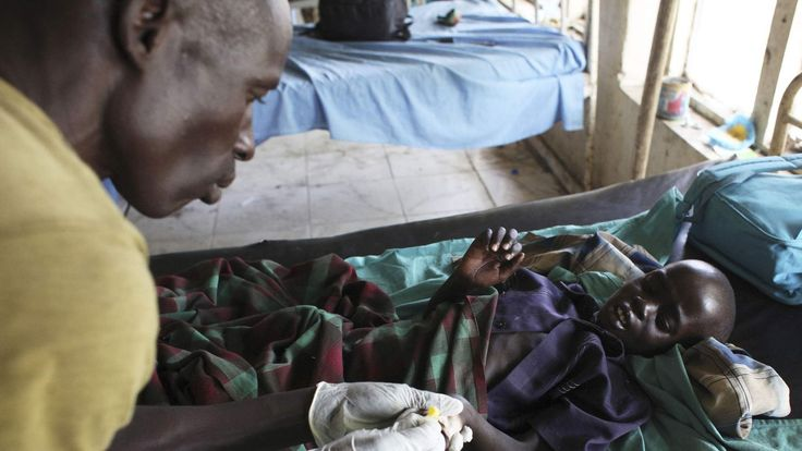 Malnourished child with malaria in South Sudan