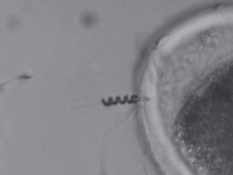 Robot Sperm