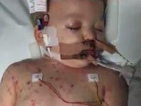 Sami Dawson son of Matt Dawson in hospital with meningitis