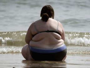 Obesity is a growing problem in the UK