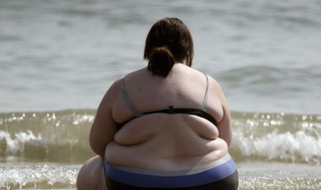 GPs told: Don't mince your words with obese patients