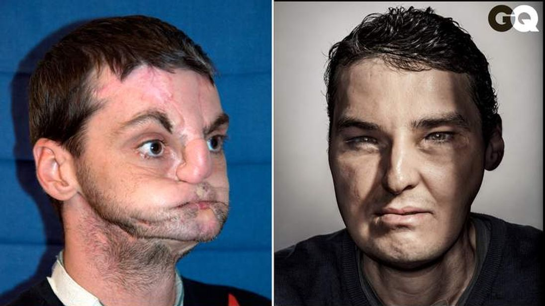 Richard Norris before and after his face transplant surgery.