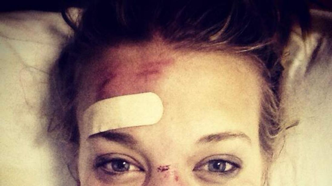 British Olympic halfpipe skier Rowan Cheshire tweets picture of her Sochi injuries
