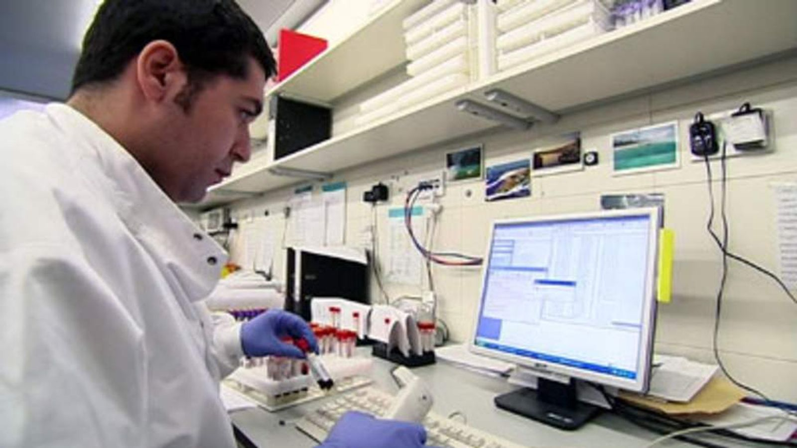 A lab worker with blood test samples checking for ovarian cancer