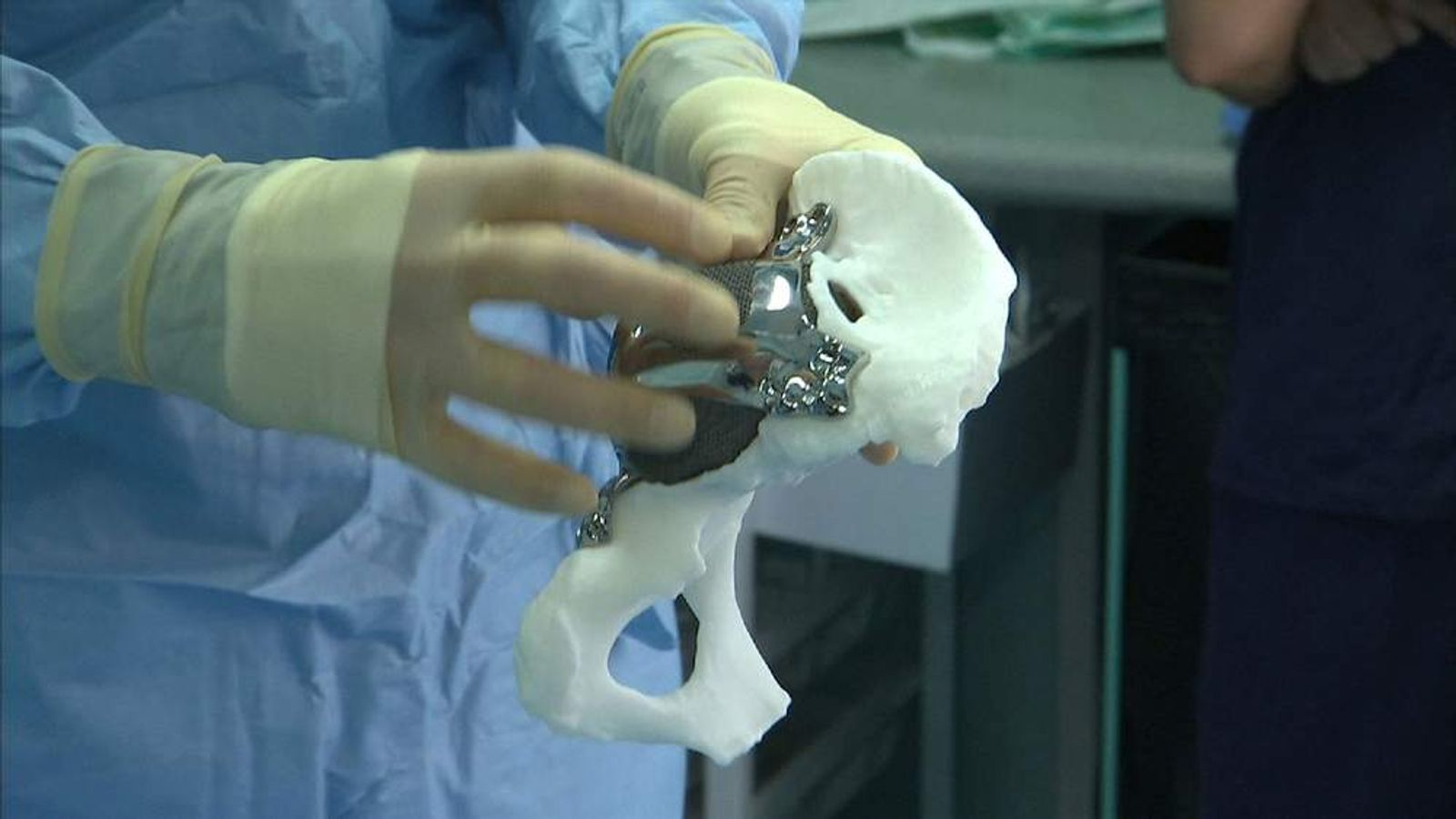 Scientists use 3D printer to create hip implant from X-ray