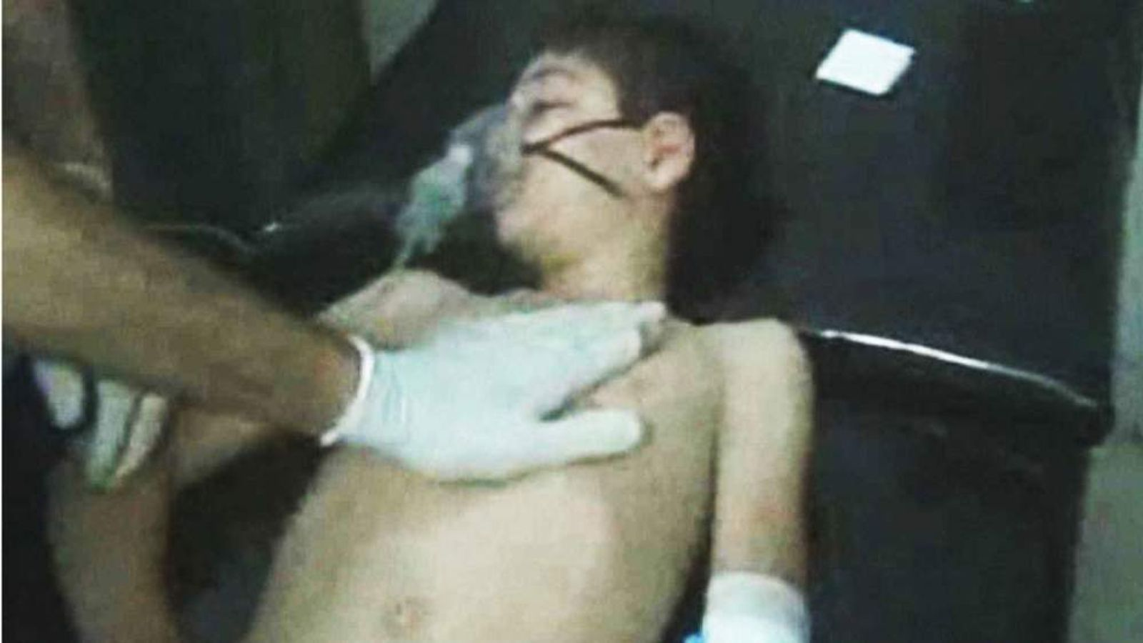 A child receives treatment in a make-shift hospital in Syria