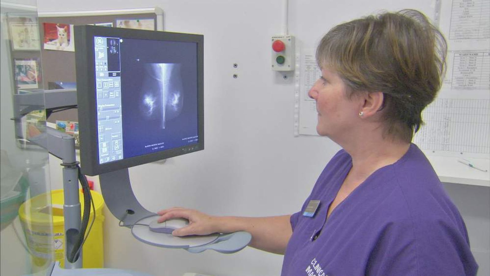 Mammogram screening procedure for breast cancer