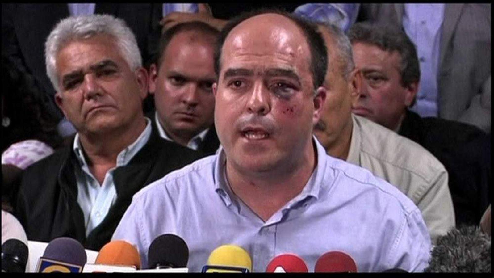 Venezuela Democratic Unity legislator, Julio Borges