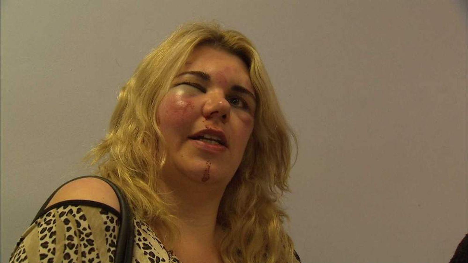 Bashing victim Samantha Haggitt