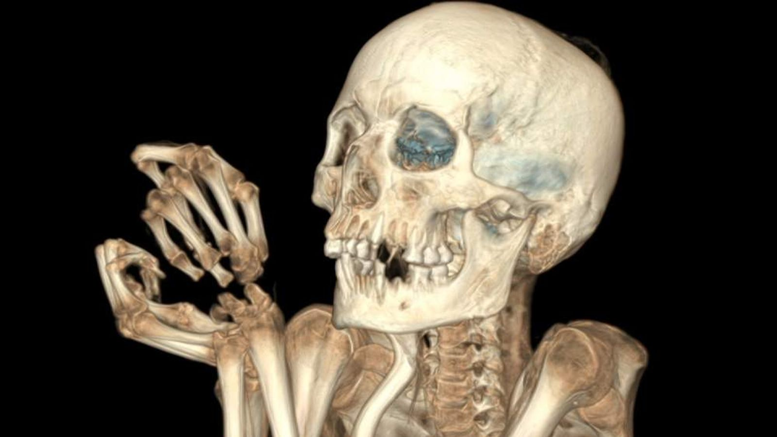 The British Museum has used CT scanners to shed new light on their mummy collection.