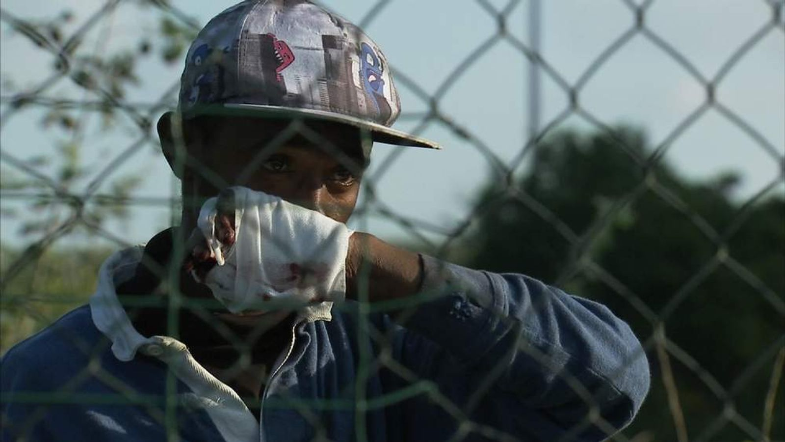 Injured migrant waits for treatment in Calais