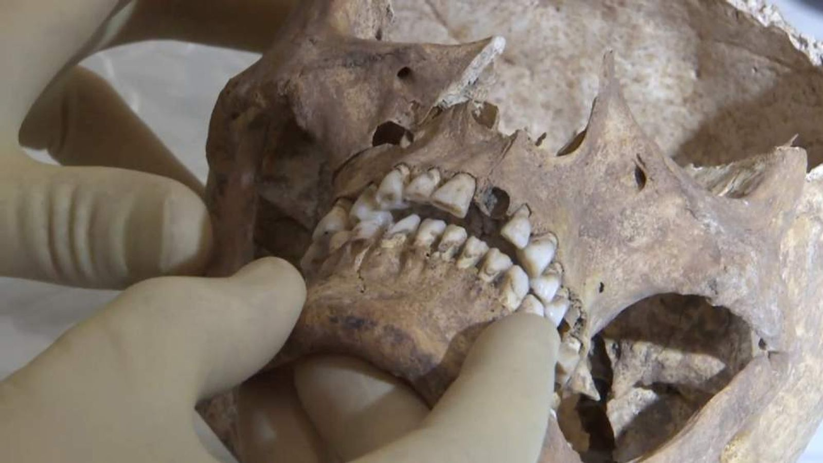 King Richard III suffered a killer blow to the skull. Pic: University of Leicester