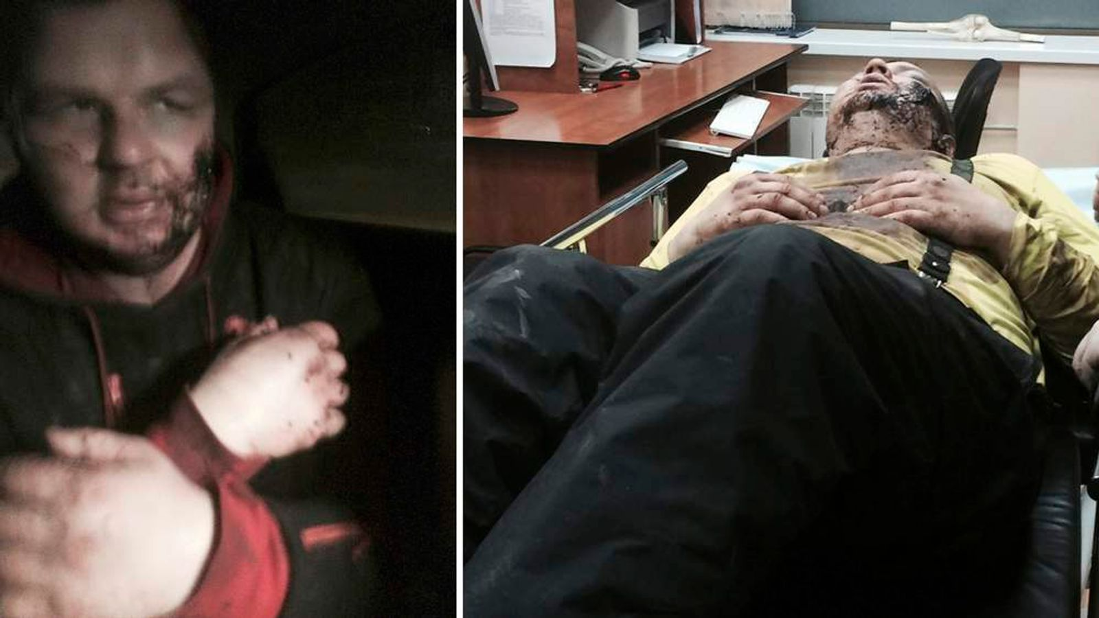 Bulatov, 35, one of the leaders of anti-government protest motorcades called 'Automaidan', is treated in hospital in Kiev
