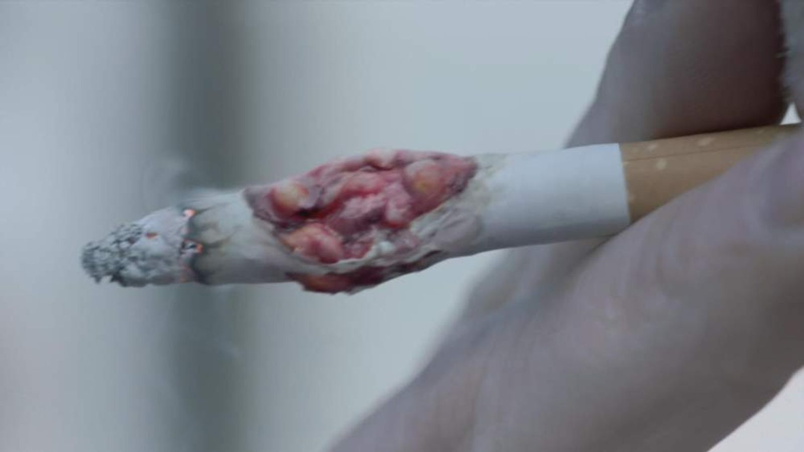 Anti-Smoking Advert Shows Cigarette Tumour