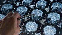 An MRI brain scan