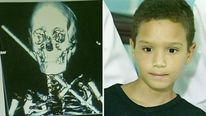 Weverton Silva whose body was pierced by an iron bar