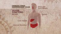 Crimean-Congo haemorrhagic fever symptoms
