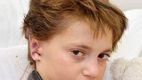 Kieran Sorkin new ears