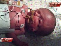 Australia Conjoined Twins With One Body And Two Brains