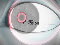 Surgeons implant Symfony lens