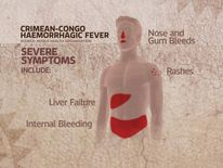 Crimean-Congo haemorrhagic fever symptoms