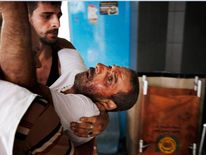 A Palestinian wounded man taken into Shifa hospital in Gaza City