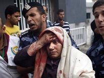 A injured Palestinian woman arrives at al-Shifa hospital in Gaza City