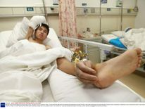 Man has severed hand attached to leg to keep it alive, Changsha, Hunan Province, China - 10 Dec 2013
