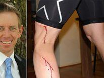 Shane Rattenbury Attacked By Kangaroo