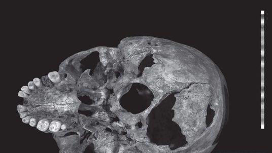 Bone Scans Of Richard III
