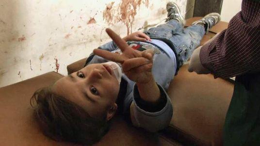 An injured boy in Aleppo