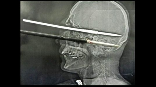 Brazilian man shot himself through the eye while cleaning harpoon gun