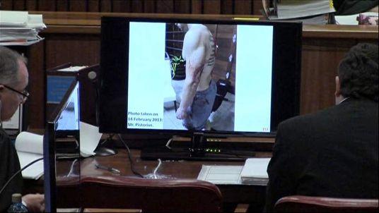 Blood on Oscar Pistorius' left arm