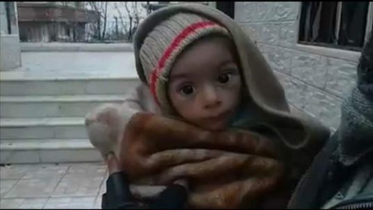 SYRIA FAMINE screen grab of starving child
