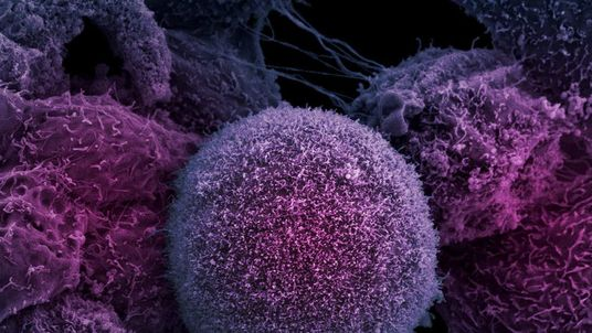 A new study claims that up to ninety per cent of cancers are caused by lifestyle factors pic:file