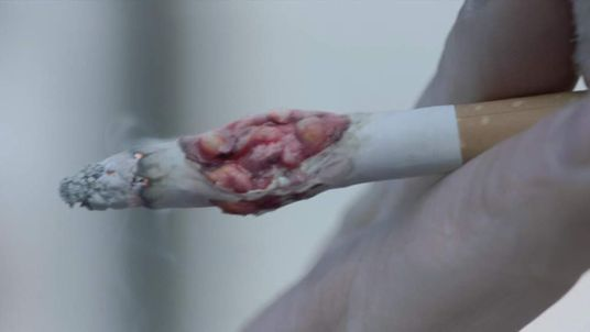 Anti-Smoking Advert Shows Cigarette Tumour