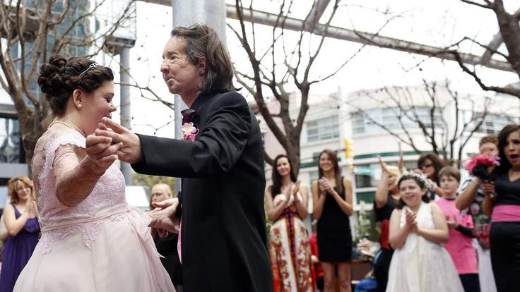 Dallas Wiens, who had first US full face transplant, marries Jamie Nash