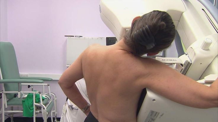 Women are urged to turn up for their breast screening appointments