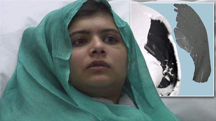 Malala Yousafzai, 14, the Pakistani schoolgirl shot in the head by Taliban gunmen