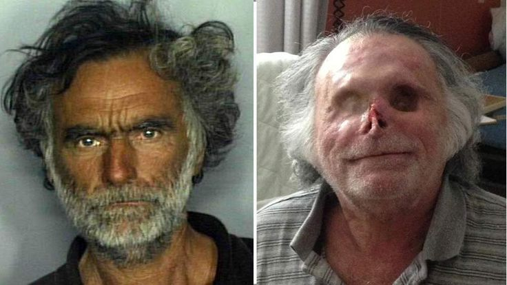 Ronald Poppo before and after the attack (R photo: Jackson Health System)