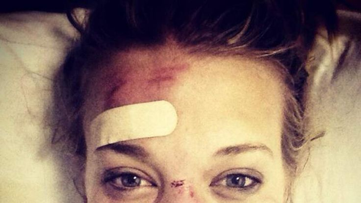 British Olympic halfpipe skier Rowan Cheshire tweets picture of her Sochi injuries