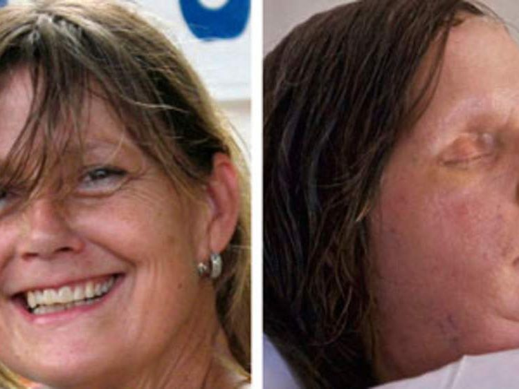 A composite picture shows Charla Nash before and after the chimp attack and face transplant