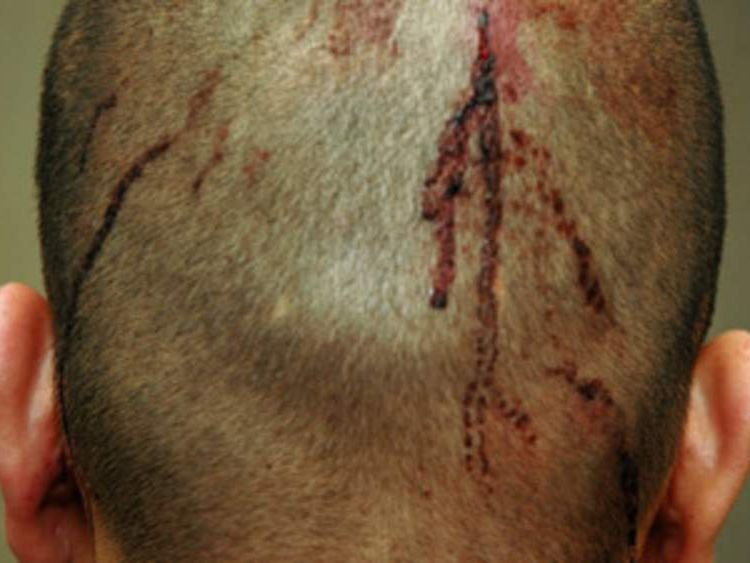 Injuries to George Zimmerman's head could be seen in photos released