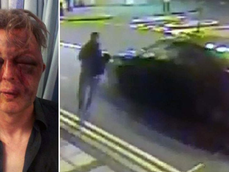 A 55-year-old man suffered horrific injuries after being attacked during a burglary in Wimbledon, southwest London