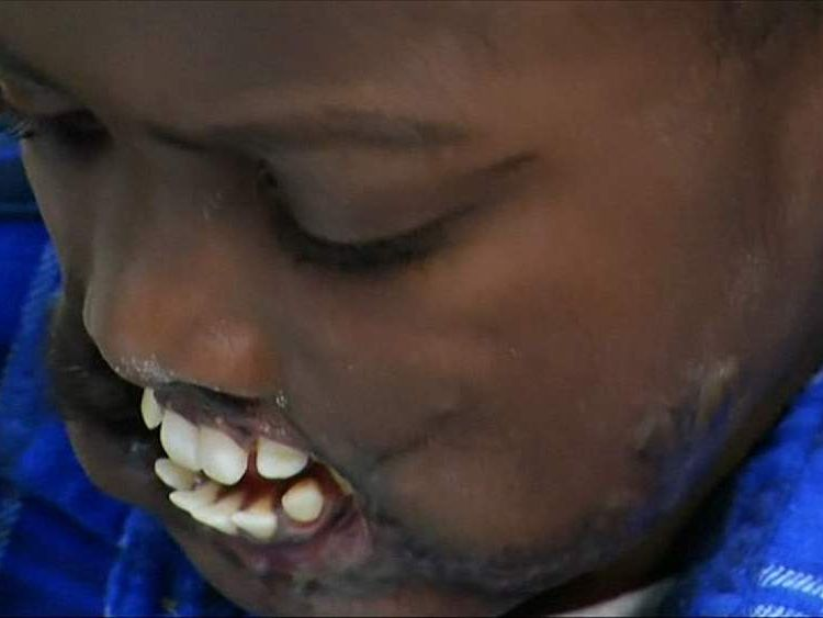 Dunia Sibomana, Congolese boy left severely disfigured after being attacked by wild chimpanzees