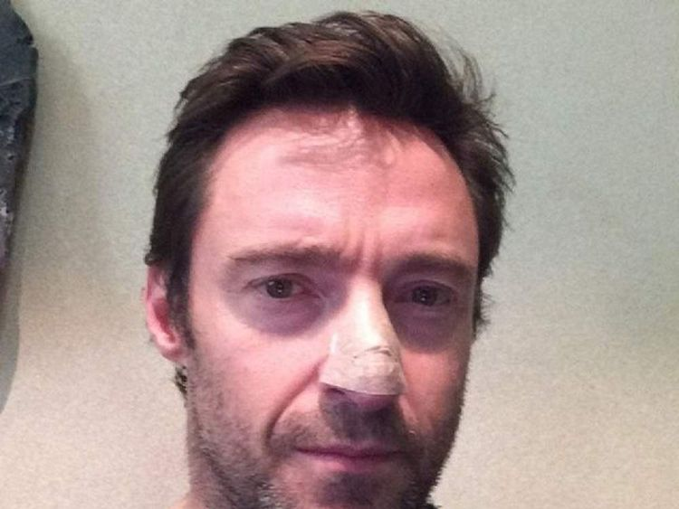 Hugh Jackman diagnosed with skin cancer (Pic: Instagram)