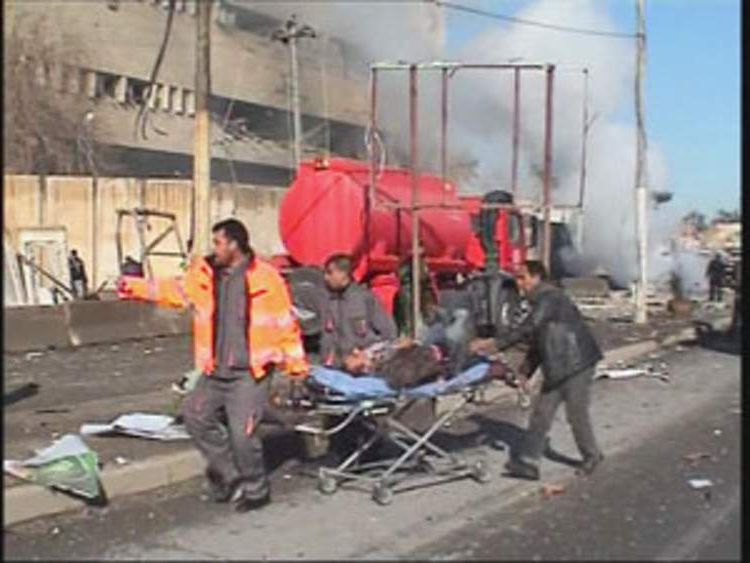 An injured man is stretchered away following the blast.