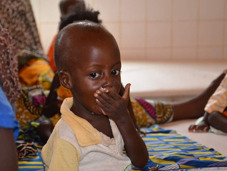 a child suffering from malnutrition at an hospital in Tillaberi, western Niger