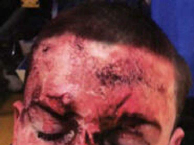 Briscoe Road assault victim