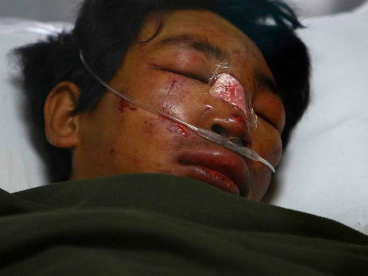 Tashi Sherpa lies on the bed of the Intensive Care Unit at Grandi International Hospital after he was rescued and airlifted from the avalanche site at Mount Everest in Kathmandu